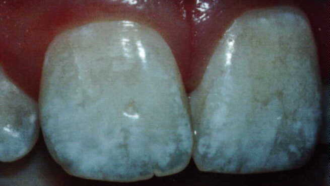Если на зубе появилось желтое пятно